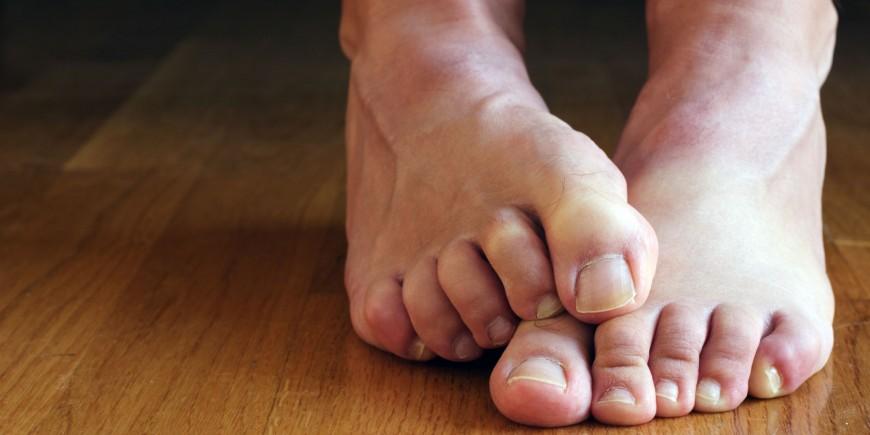 hyperhidrose des pieds