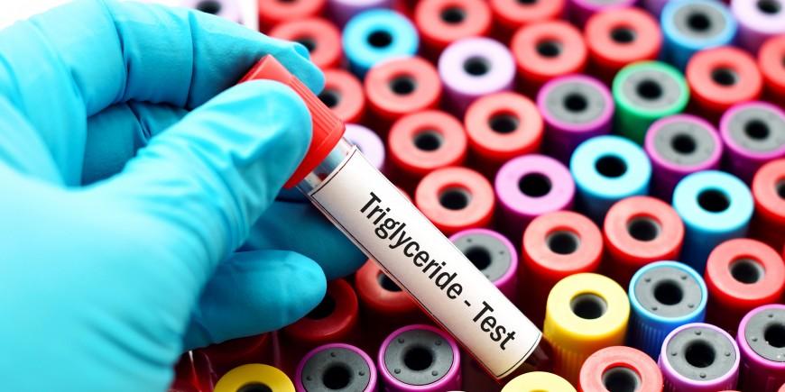 Triglycérides : à partir de quel taux s'inquiéter ? - Onmeda.fr