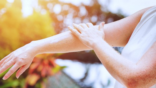 Eine Frau cremt mit der linken Hand ihren rechten Arm ein.