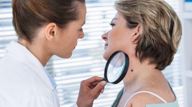 Ist es eine Alterswarze? Eine Hautärztin betrachtet ein Muttermal am Hals einer Frau mit einem Vergrößerungsglas.