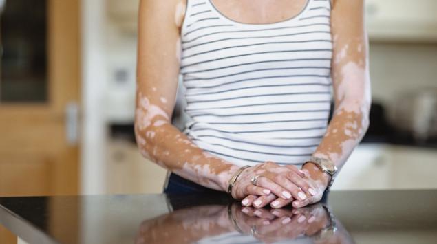 Eine Frau mit Vitiligo an den Armen: Die Weißfleckenkrankheit ist harmlos, kann jedoch sehr belastend sein.