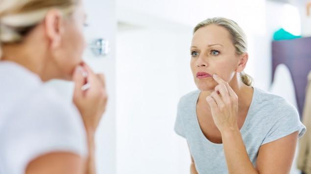 Eine Frau betrachtet ihren Mund im Spiegel: Eingerissene Mundwinkel erweisen sich oft als hartnäckig.