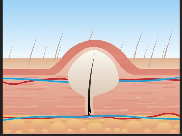 Ein Furunkel entsteht immer ausgehend von einem Haarfollikel.