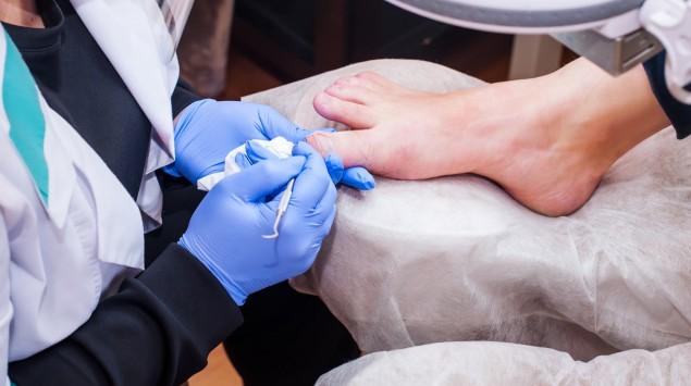 Ärztin untersucht Fußnägel.