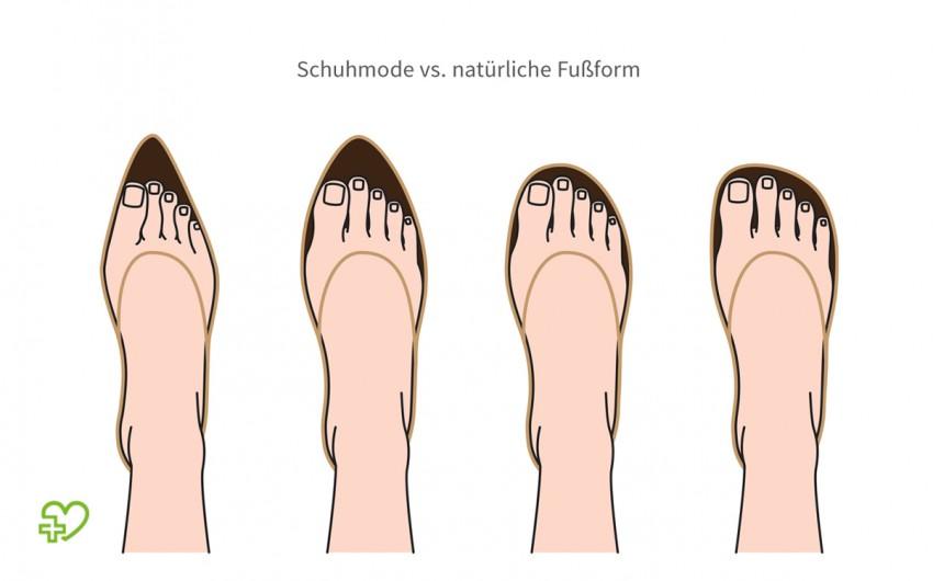 Illustration mit vier Füßen in unterschiedlich geformten Schuhen