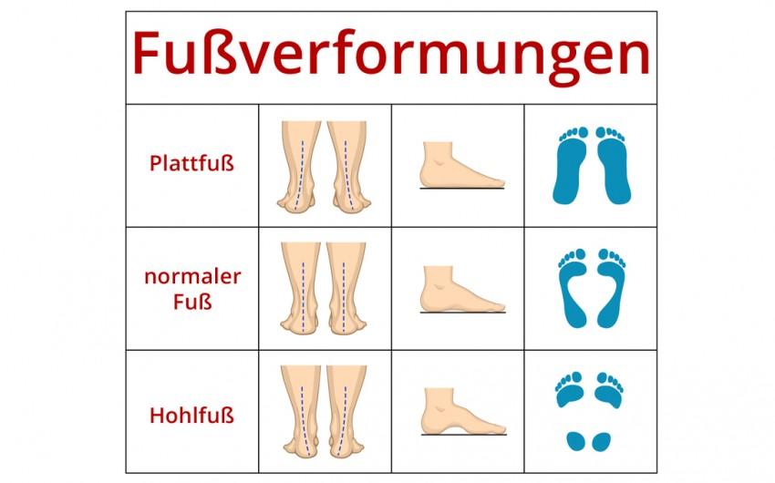 Im Vergleich: Abdruck und Profil verschiedner Fußformen
