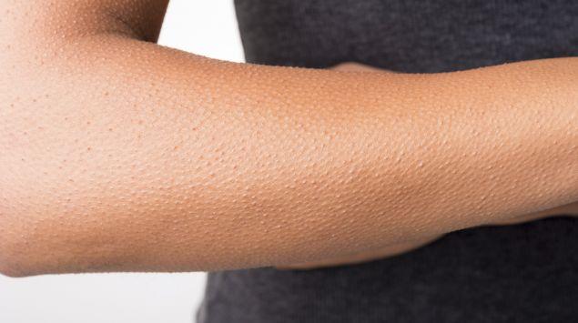 Gänsehaut auf dem Arm einer Person.