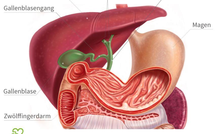 Cholangitis Entzündete Gallenwege Onmedade