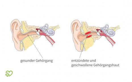 Gehörgangsentzündung (Otitis externa): Was ist das? - Onmeda.de