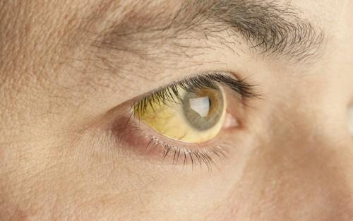 Das Bild zeigt das Auge eines Gelbsucht-Betroffenen.