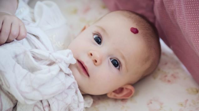 Ein Baby mit einem Hämangiom auf der Stirn