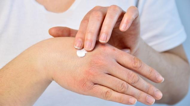 Eine Frau cremt ihre trockenen Hände ein.