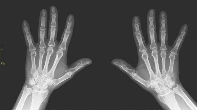 Röntgenaufnahme einer rechten und linken Hand.