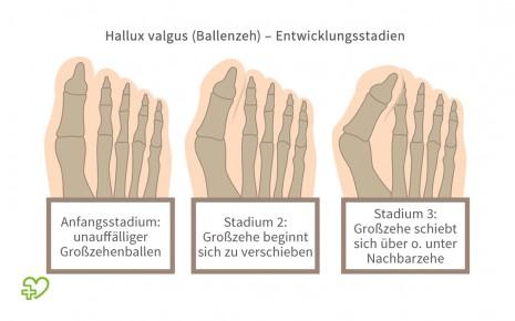 Illustration verschiedener Entwicklungsstadien des Hallux valgus.