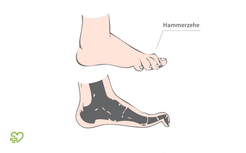 Grafische Darstellung einer Hammerzehe