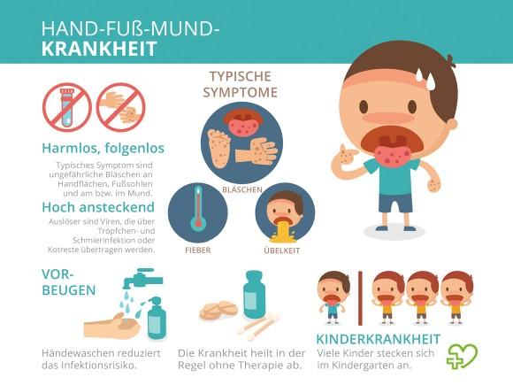 Illustration der typischen Symptome bei Hand-Fuß-Mund-Krankheit