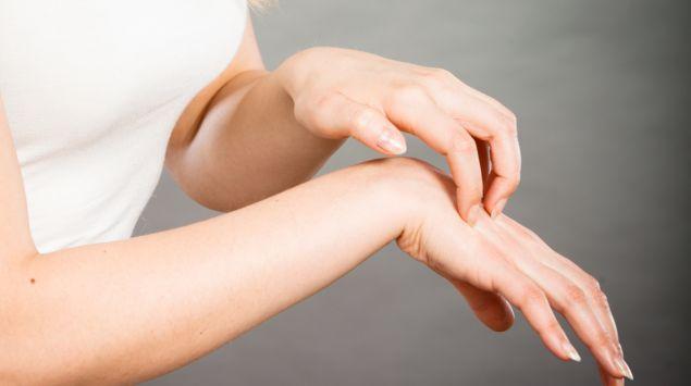 Eine Frau kratzt sich am Handrücken der rechten Hand.