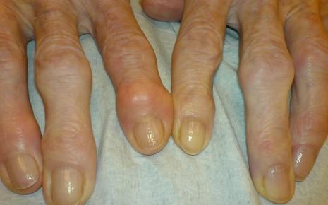 Hände mit Heberden-Bouchard-Arthrose; am Zeigefinger sieht man einen Entzündungsschub (aktivierte Heberden-Arthrose)