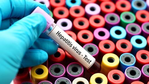 Jemand hält ein Teströhrchen mit roter Flüssigkeit und der Aufschrift Hepatitis Virus Test in dern Hand..