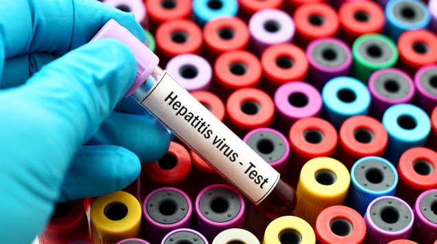 Hepatitisviren sind die häufigste Ursache für Leberentzündungen.