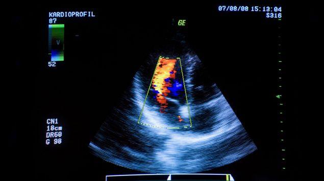 Man sieht eine Herzultraschall-Aufnahme.