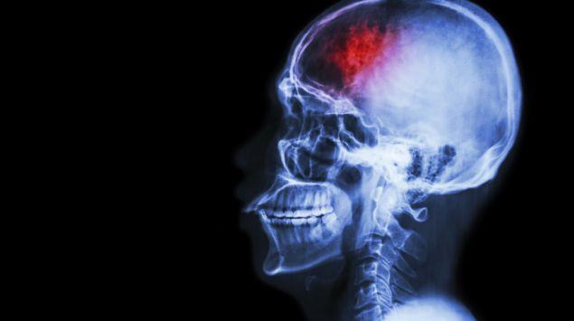 Auf dem Röntgenbild eines menschlichen Schädels ist ein Teil des Gehirns rötlich eingefärbt.