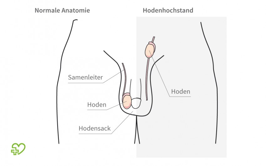 Hodenhochstand (Maldescensus testis) Definition - Onmeda.de