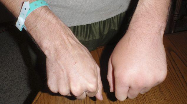 Das Bild zeigt eine geschwollene Hand