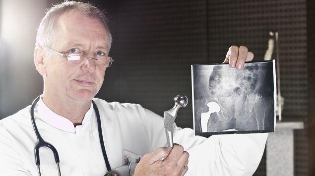 Ein Arzt hält ein Röntgenbild in die Höhe, auf dem ein eingepflanztes künstliches Hüftgelenk zu sehen ist, und hält zum Vergleich eine Hüftprothese daneben.