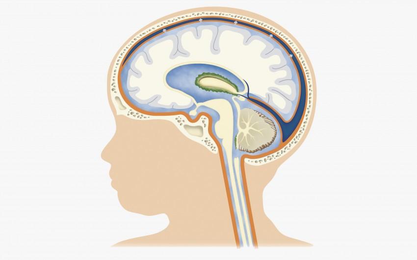 Gehirnflüssigkeit im Kopf eines Babys