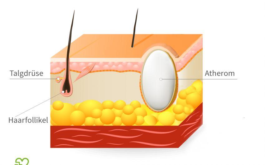 Bild eines Atheroms, vereinfachte Darstellung: Ein Atherom wächst immer im Bereich der Haarfollikel. Der Inhalt ist von einer Kapsel umhüllt.