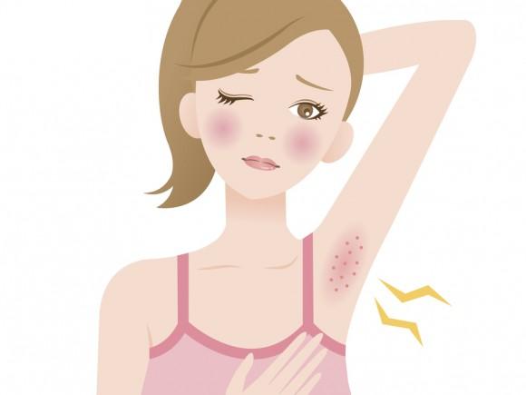 Häufig bilden sich die schmerzhaften Knoten unter der Achsel.