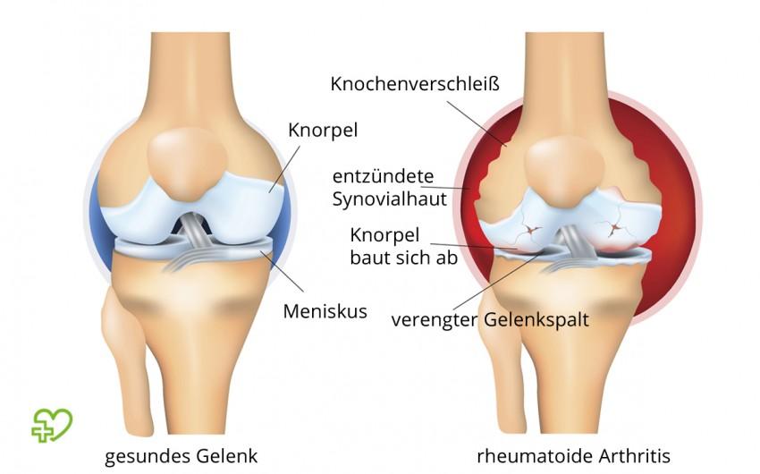 Illustration der rheumatoiden Arthritis.