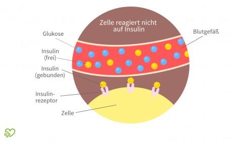 Diabetes mellitus Typ 2: Schematische Darstellung der Abläufe bei einer Insulinresistenz.