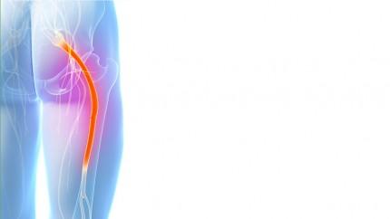 Die Medizin die Behandlung der Osteochondrose der Halswirbelsäule