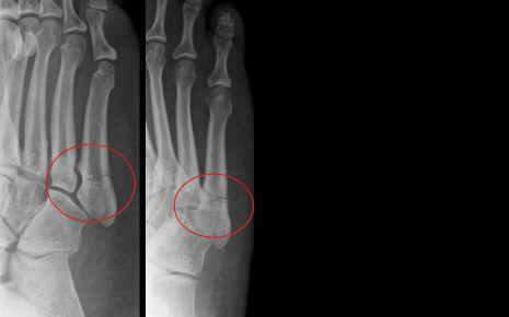 Das Bild zeigt die Röntgenaufnahmen eines Ermüdungsbruchs im Fuß, die sogenannte Jones-Fraktur.