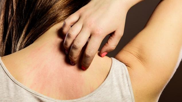 Frau kratzt sich wegen Juckreiz am Rücken