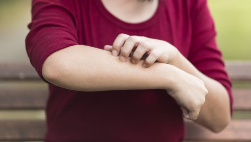 Eine Frau kratzt sich am Unterarm.