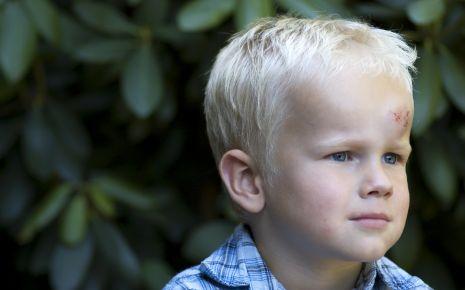 Ein Junge mit einer Beule: Eine Gehirnerschütterung kann viele Ursachen haben.