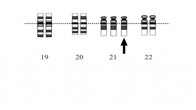 Man sieht einen für Down-Syndrom typischen Karyotyp mit dreifachem Chromosom 21.