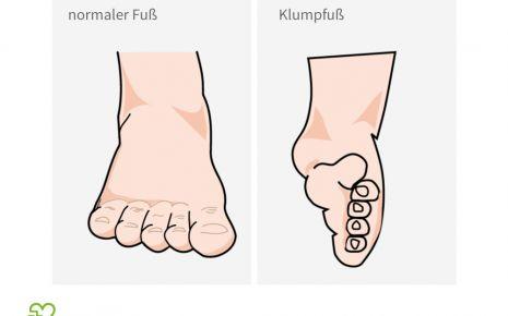 Normaler Fuß und Klumpfuß