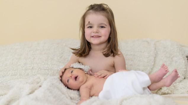 Ein Mädchen im Kleinkindalter mit kongenitalem Nävus über der Augenbraue hält sein neugeborenes Geschwisterchen im Arm.