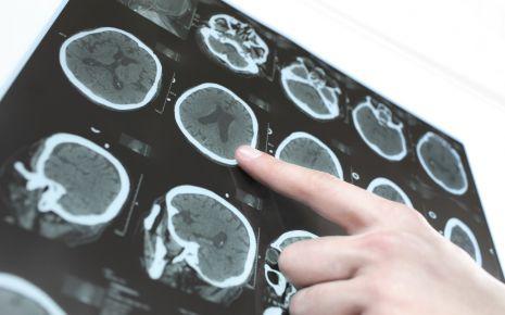 Eine wichtige Untersuchung bei Verdacht auf ein Schädel-Hirn-Trauma ist die Computertomographie des Kopfes  (Schädel-CT). Damit kann der Arzt feststellen, wie schwer das Gehirn verletzt worden ist.