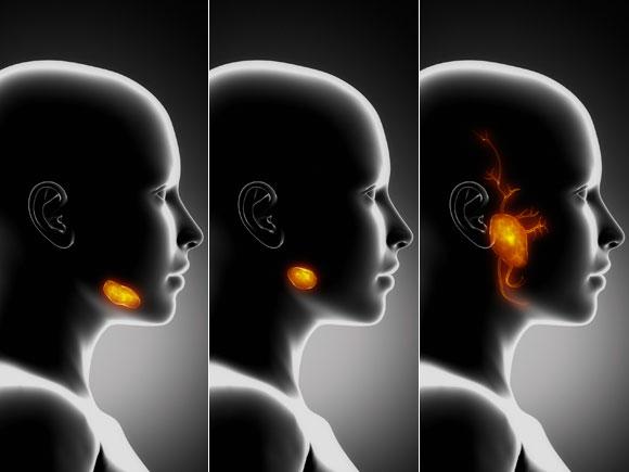 Trockener Mund: Darstellung der großen Kopfspeicheldrüsen.