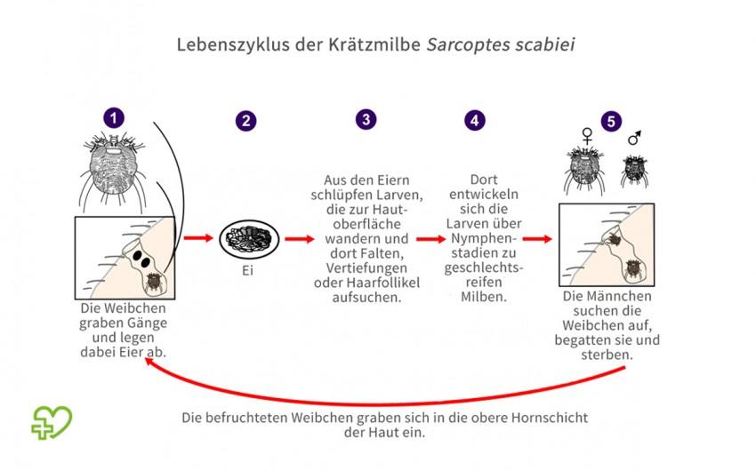 Lebenszyklus der Krätzmilbe.