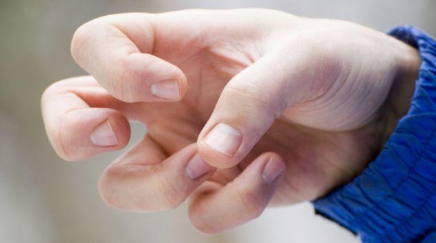 Eine verkrampfte Hand.