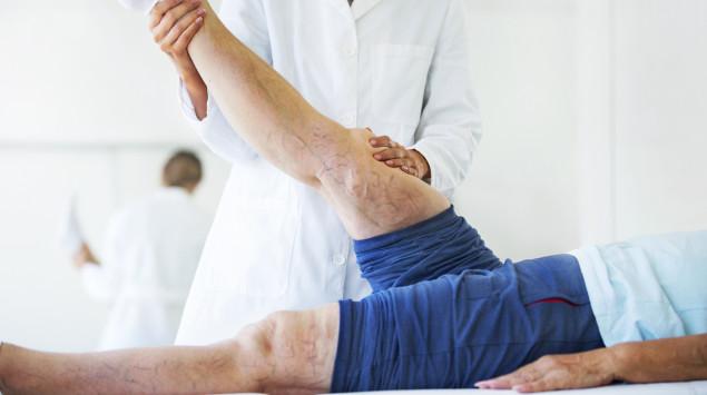 Eine Frau mit Krampfadern lässt sich beim Arzt beraten, ob und wie sie ihre Krampfadern entfernen lassen soll.