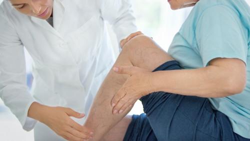 Eine Frau lässt ihre Krampfadern von einer Ärztin begutachten.