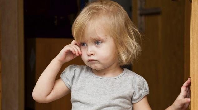 Das Bild zeigt ein krankes Mädchen mit Windpocken.