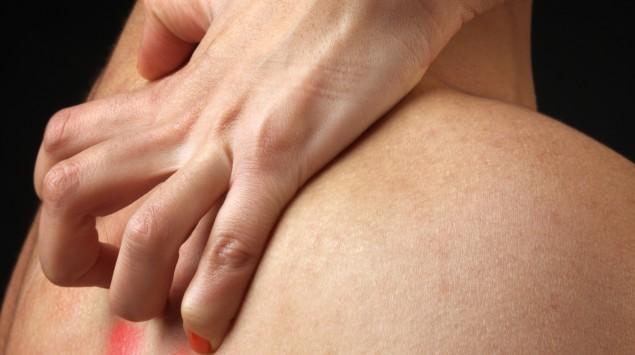 Eine Frau kratzt über den Rücken eines Mannes.